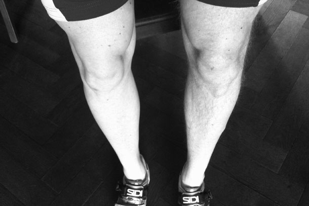 geschoren benen mannen