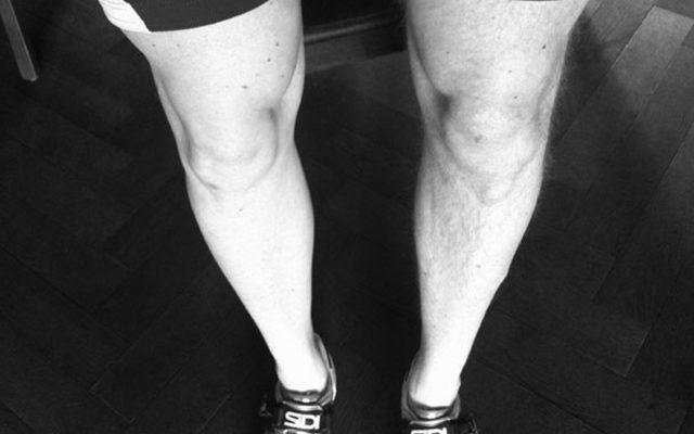 Benen scheren: hoe scheer ik mijn benen als wielrenner?